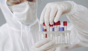 Manouba-covid19: 60 nouvelles contaminations